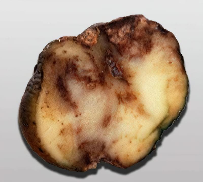 Гниття картоплі через фітофтору